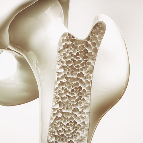 Animated bone structure with osteoarthritis of the hip